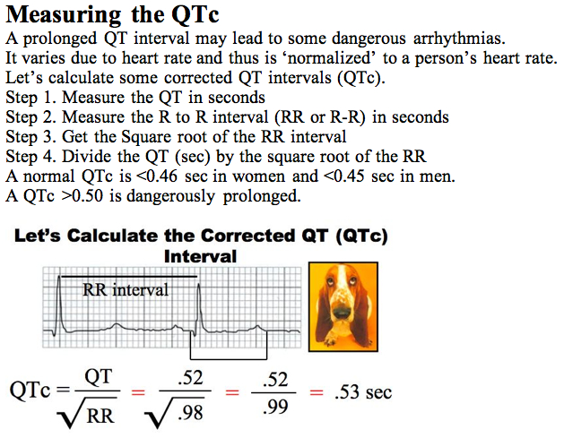 qt interval corrected measurement