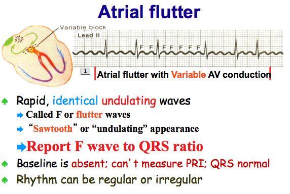 Atrial Flutter Vs Atrial Fibrillation Ecg