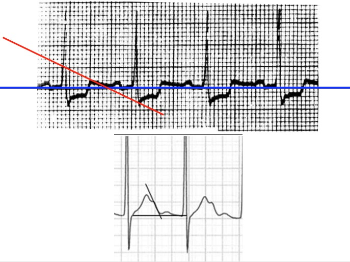 Drawing Lines With Qt : Qt interval corrected measurement
