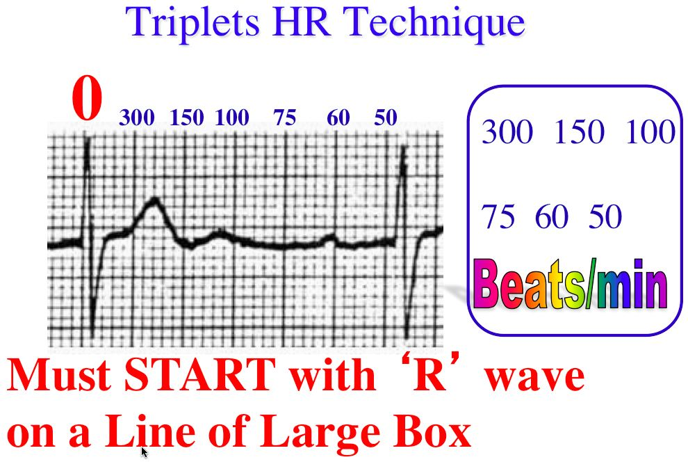 triplets r to r 6 second heart rate method