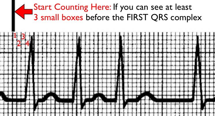 where to start count for an irregular rhythm