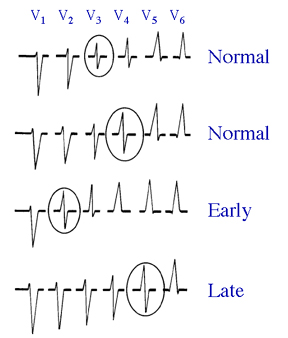 r wave transision